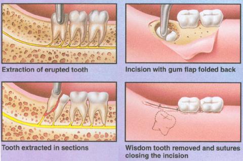 Dentist In Mumbai Grant Road Dentists In Mumbai Kemps Corner